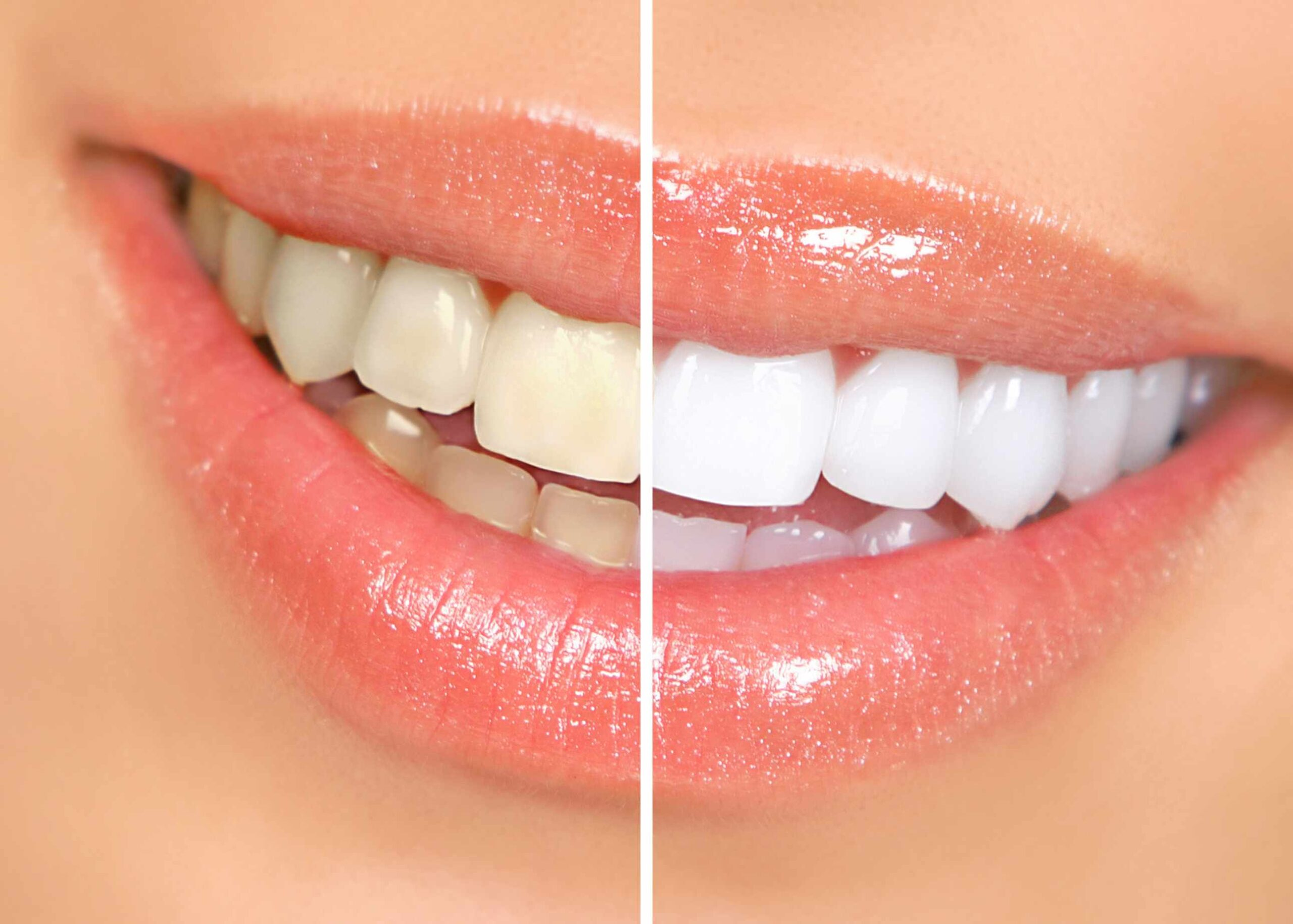 Teeth Whitening Brampton