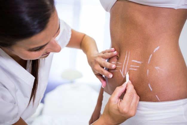 Body Contouring: Non-Surgical Body Sculpting
